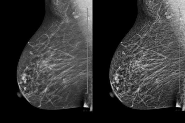 Πρόληψη και έγκυρη διάγνωση του καρκίνου του μαστού