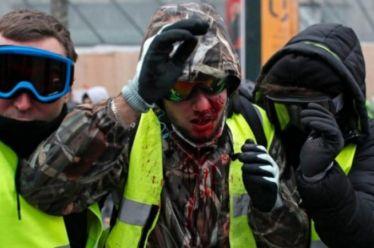 Τα Κίτρινα Γιλέκα στους δρόμους-σοβαρός τραυματισμός διαδηλωτή