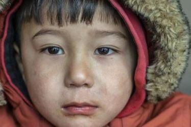 Μόρια: Καρδιοπάθειες, επιληψία, διαβήτης – Κραυγή αγωνίας για 140 παιδιά με σοβαρά προβλήματα υγείας